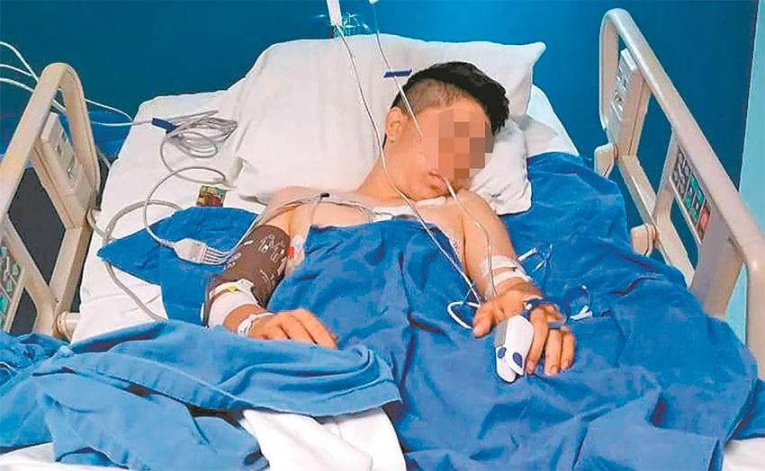 Joven de 16 años pierde una pierna tras ser atacado por policías estatales en Guerrero